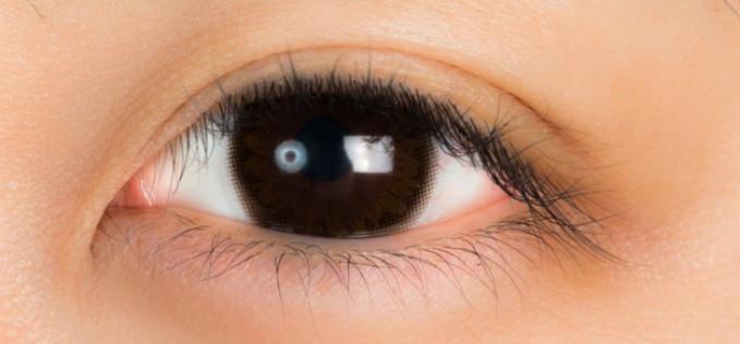 ムコスタ点眼の服薬指導